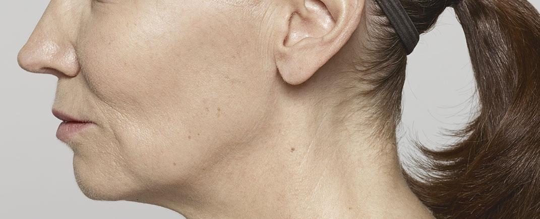 facial volume after