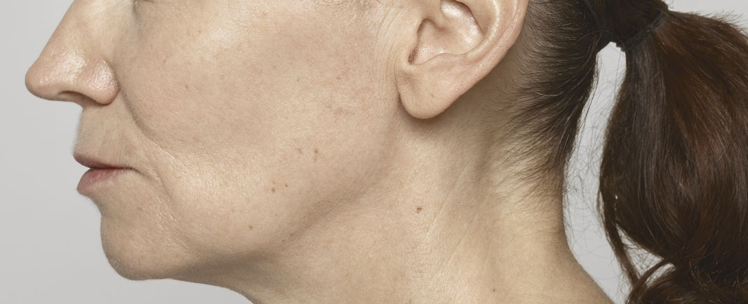 facial volume before