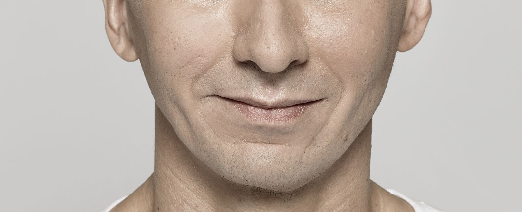 after anti wrinkle injection