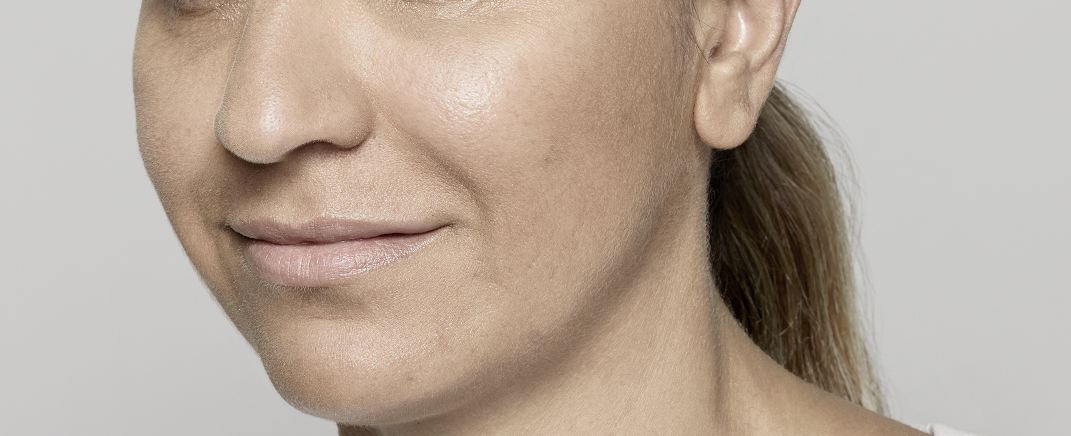 after anti wrinkle treatment