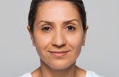 facial volume loss injection