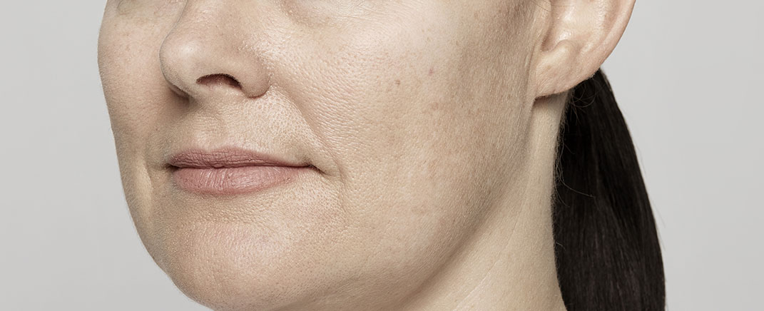 anti wrinkle treatment before