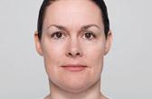 facial volume loss treatment