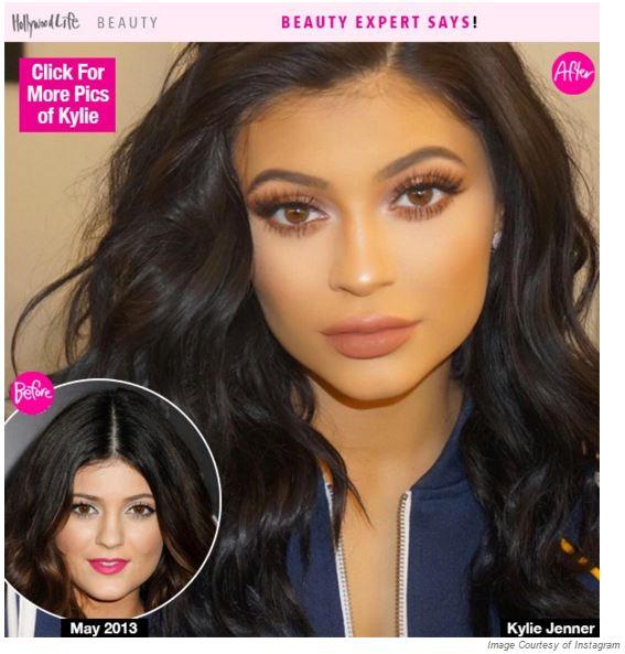 Kylie-Jenner-Lip-Augmentation