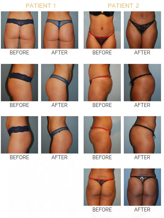 beforeafterga