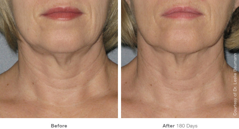 Ultherapy-0058D_0Day-120Day-1TX_BEFOREAFTER_Full